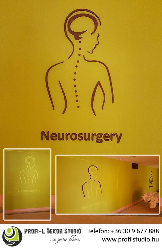Referencia_16.04.01 - Neurosurgery 3D habvágás.jpg